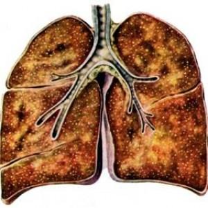 Туберкулез легких (Вторичная форма). Схема.