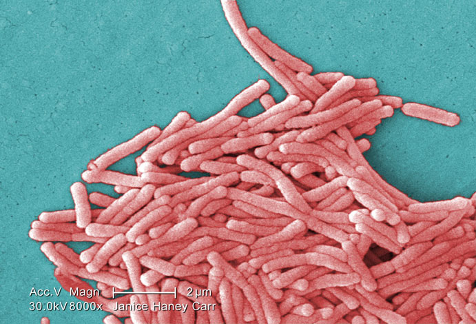 Микроскопический вид легионеллы.