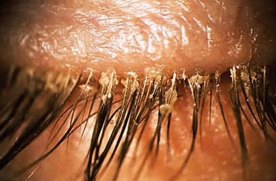 себорея кожи области ресниц