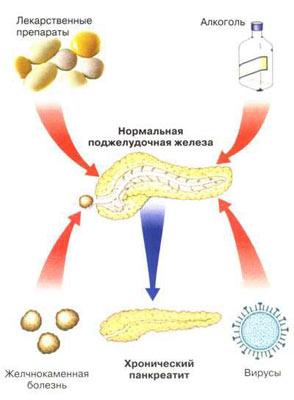 Панкреатит (схема).