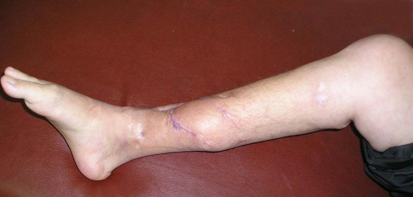Воспаление в костях (Остеомиелит).