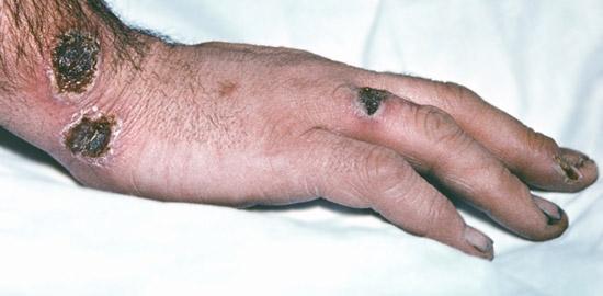сибирская язва - карбункул на руке