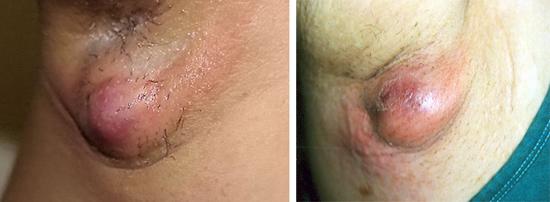 гидраденит - симптом стафилококковой инфекции