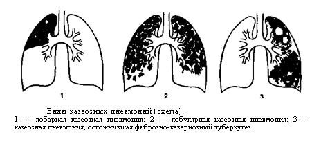 Казеозная пневмония.