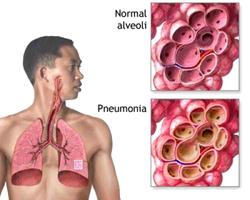 Воспаление легких (схема).