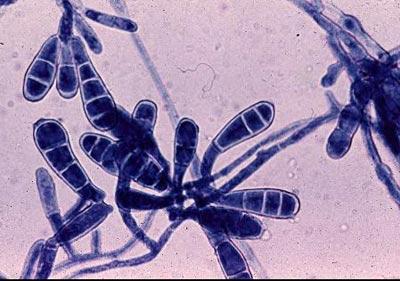 микроскопия Epidermophyton floccosum