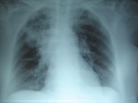 Пневмония у больного муковисцидозом.