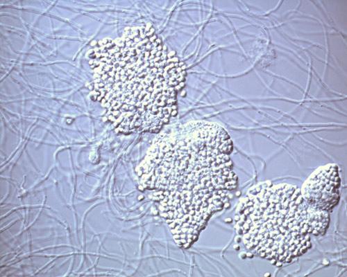 Спорангий актиномицетов рода Frankia.