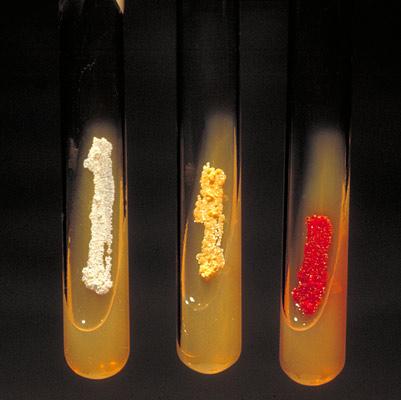 Аэробные актиномицеты образуют пигмент на скошенном агаре. Слева направо: Actinomadura madurae, Nocardia asteroides, Micromonospora.