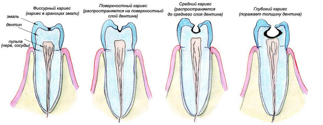 Классификация поражения тканей зуба.