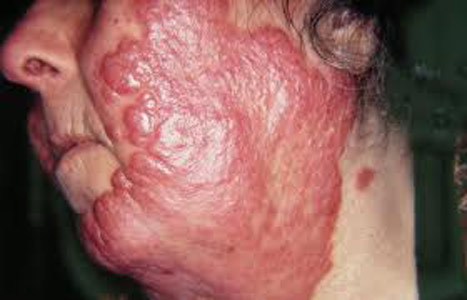 Обширное волчаночное поражение кожи лица и шеи.