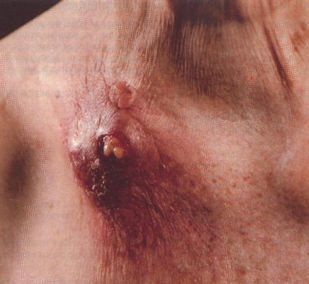 Туберкулез кожи колликвативный (скрофулодерма).