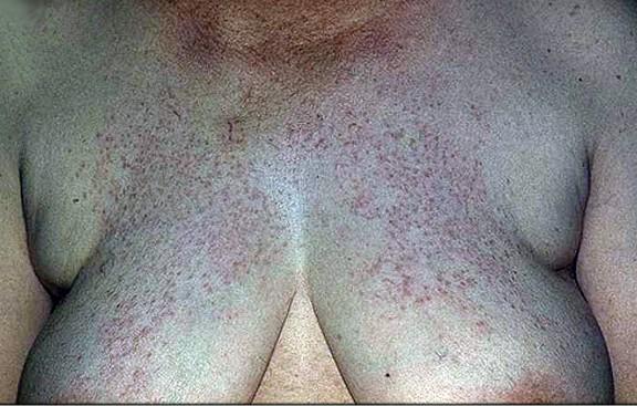 Лихеноидный туберкулез кожи.
