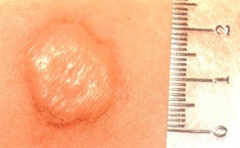 Замер рубчика после прививки БЦЖ.