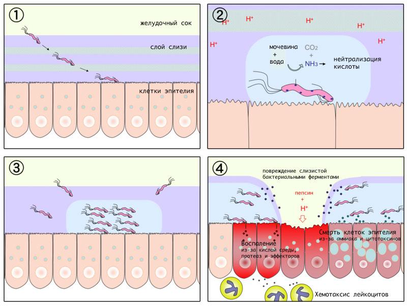 Схема патогенеза язвенной болезни желудка.
