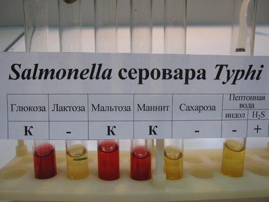 Лабораторное исследование на выявление сальмонеллы.