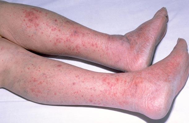 Петехии в коже при менингокцемии.