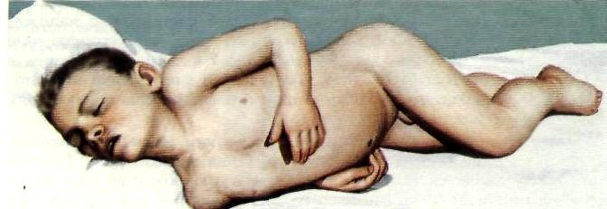 При поражении оболочек мозга больной принимает особую позу: лежа на боку сгибает ноги и запрокидывает голову.