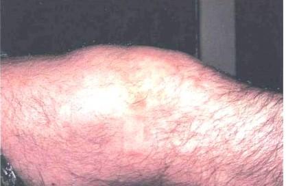 Артрит при менингококковой инфекции.