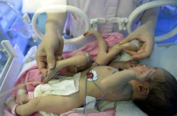 На фотографии пневмония (воспаление легких) у новорожденного.