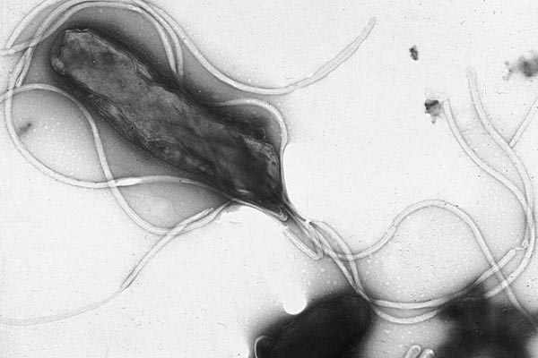 Helicobacter pylori (фото в сканирующем электронном микроскопе).