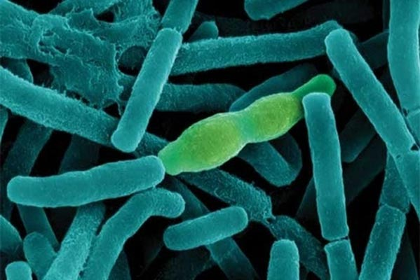 Фотография бактерии Bacillus anthracis