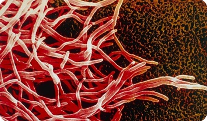 картинки паразитов живущих в организме человека