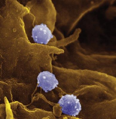 Рис. 1. Внешний вид хламидий под микроскопом.