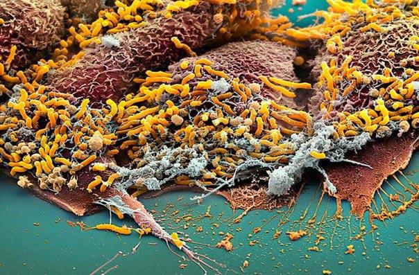 Колония Helicobacter pylori находящаяся на слизистой желудка.