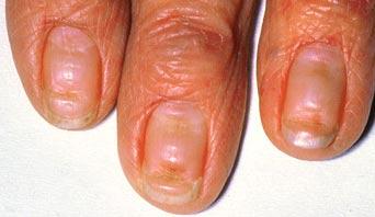 Ногтевой грибок лечение настойкой прополиса