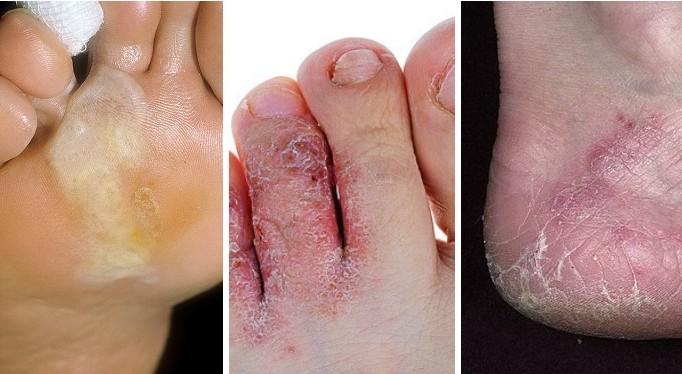 Как избавиться от грибка ногтей на стопах