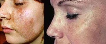 кожа лица при отрубевидном лишае