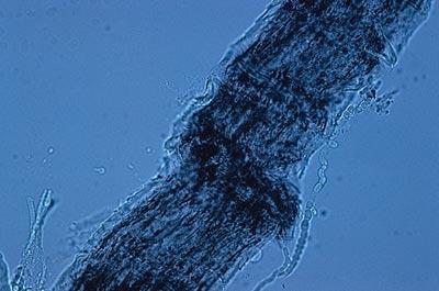 микроскопия при микроспории.