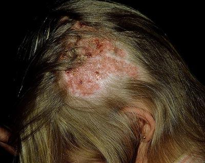 микроспория кожи головы, вызванная ржавым микроспорумом.