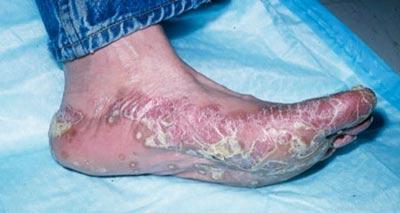 подошвенная дерматофития стоп