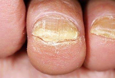 Можно ли вывести грибок на ногах уксусом 9