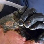 Чума — острое инфекционное особо опасное заболевание