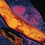 Возбудитель туберкулеза — коварная и опасная палочка Коха