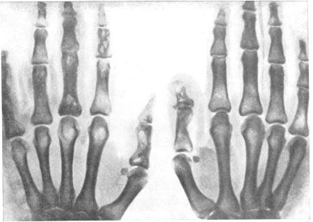 Туберкулезный остит