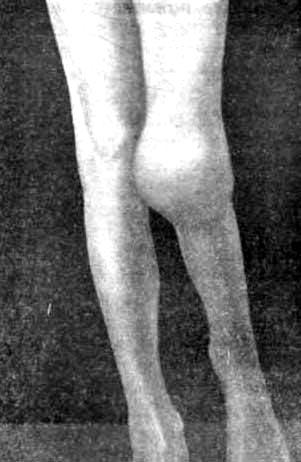 последствия туберкулеза левого коленного сустава