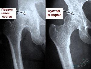 диагностика заболевания суставов
