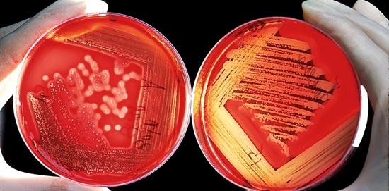 бактериоскопические методы
