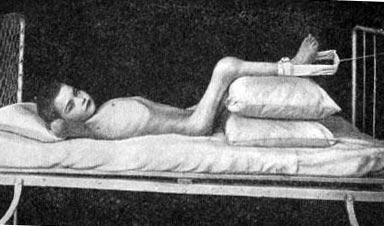 вытяжение на подушках с манжеткой
