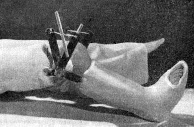 закрутка для исправления коленного сустава