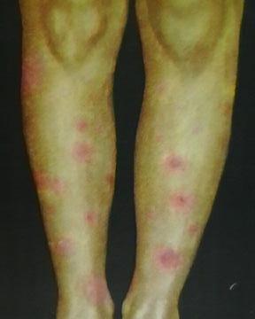 параспецифическая реакция при туберкулезе – узловая эритема