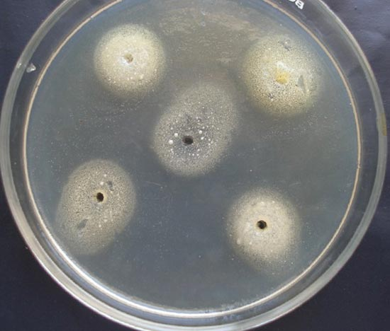какие бактерии вызывают аллергию