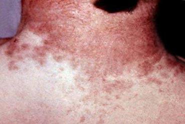 поражение кожи при иерсиниозе