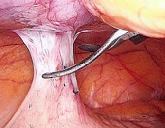 рассечение спаек при хламидиозе у женщин