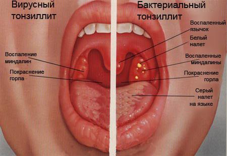 отличия вирусного и бактериального тонзиллита