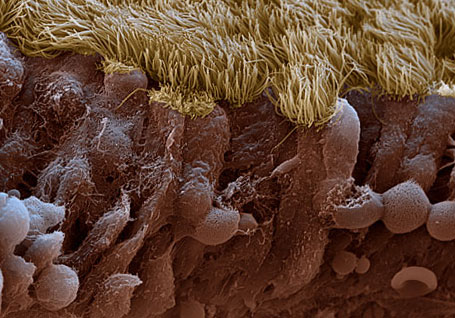 ворсинки слизистой оболочки пазух носа